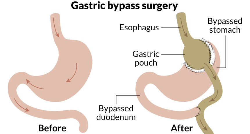 021517_lb_gastric-bypass_free